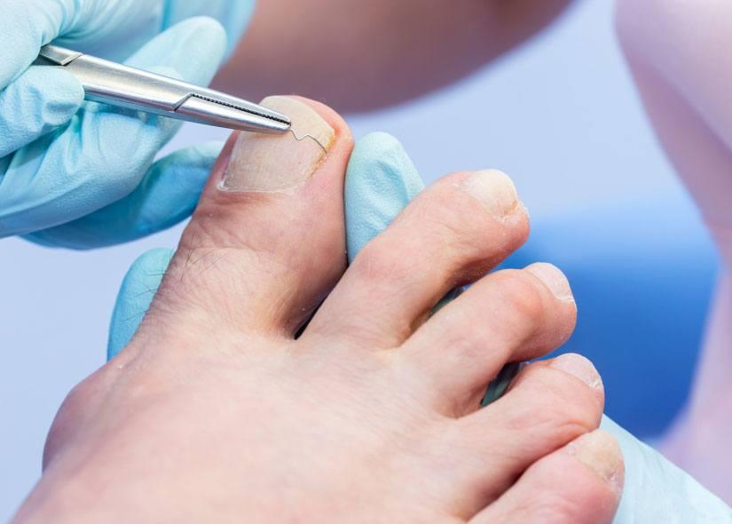 leczenie-wrastajacych-paznokci